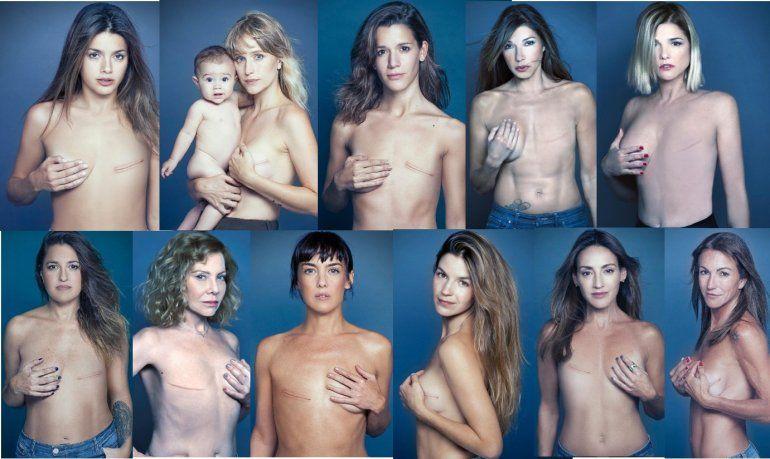 Impactante campaña con Cathy Fulop, Araceli González,Urtizberea, Wexler, Gandini y más famosas para luchar contra el cáncer de mama