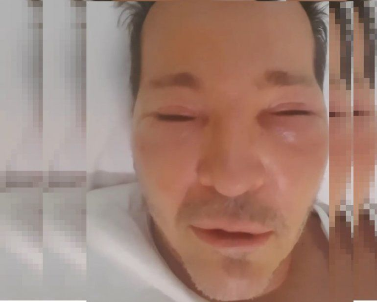 ¿Qué le pasó? Guido Süller subió un video desfigurado
