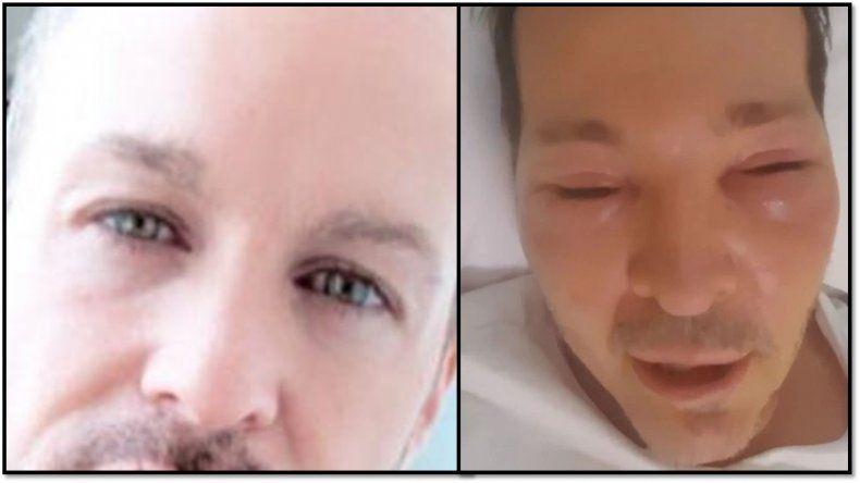 ¿Qué le pasó a Axel?: tiene el síndrome Guido Süller