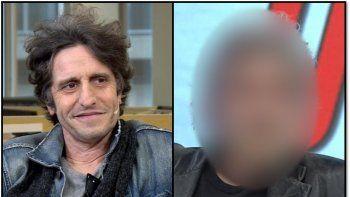 ¿Qué le pasó a Peretti?: Las fotos de su nuevo look lo muestran arruinado