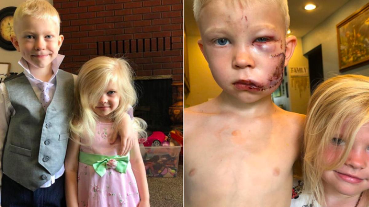 Pequeño gran héroe: Niño salvó a su hermanita del ataque de un perro