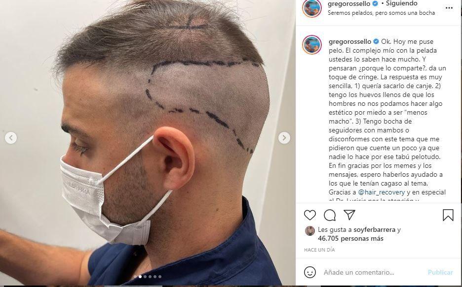 Este es el posteo donde Grego Rossello mostró su nuevo cabello