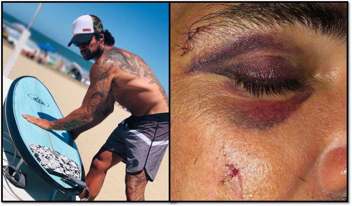 Luciano Castro accidentado: puntos y un ojo morado