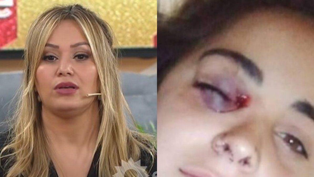 Karina la Princesita indignada con la policía por agredir a una amiga de Úrsula que pedía justicia