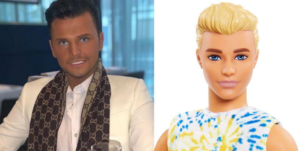 Jimmy Featherstone gastó miles de dólares para parecerse a Ken. Lo desfiguraron.