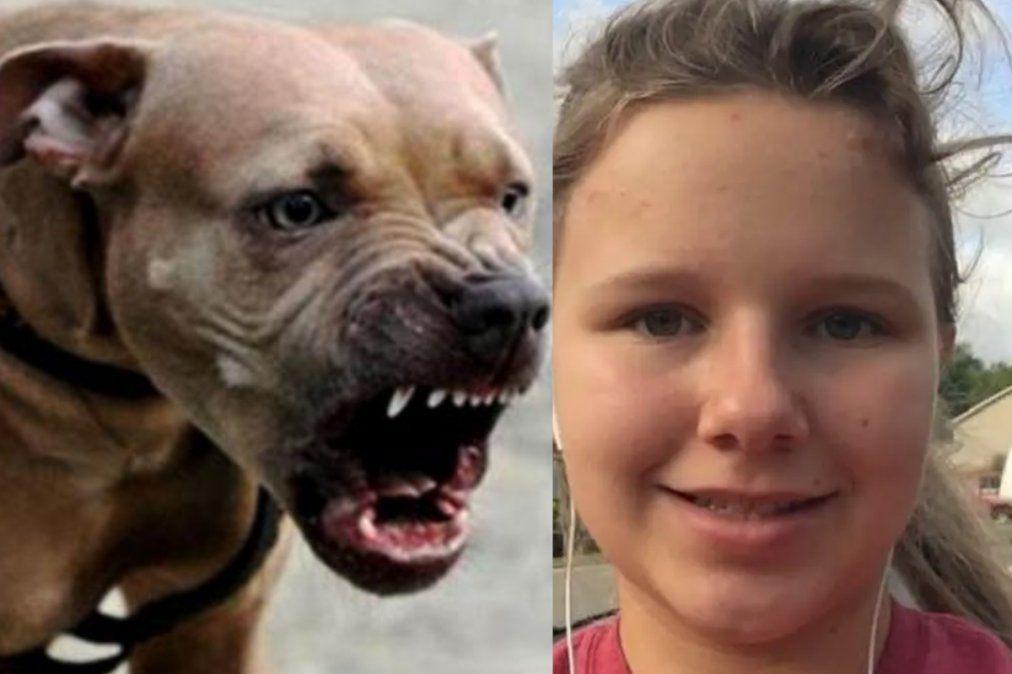 Pitbulls atacaron a una niña de 15 años que está grave