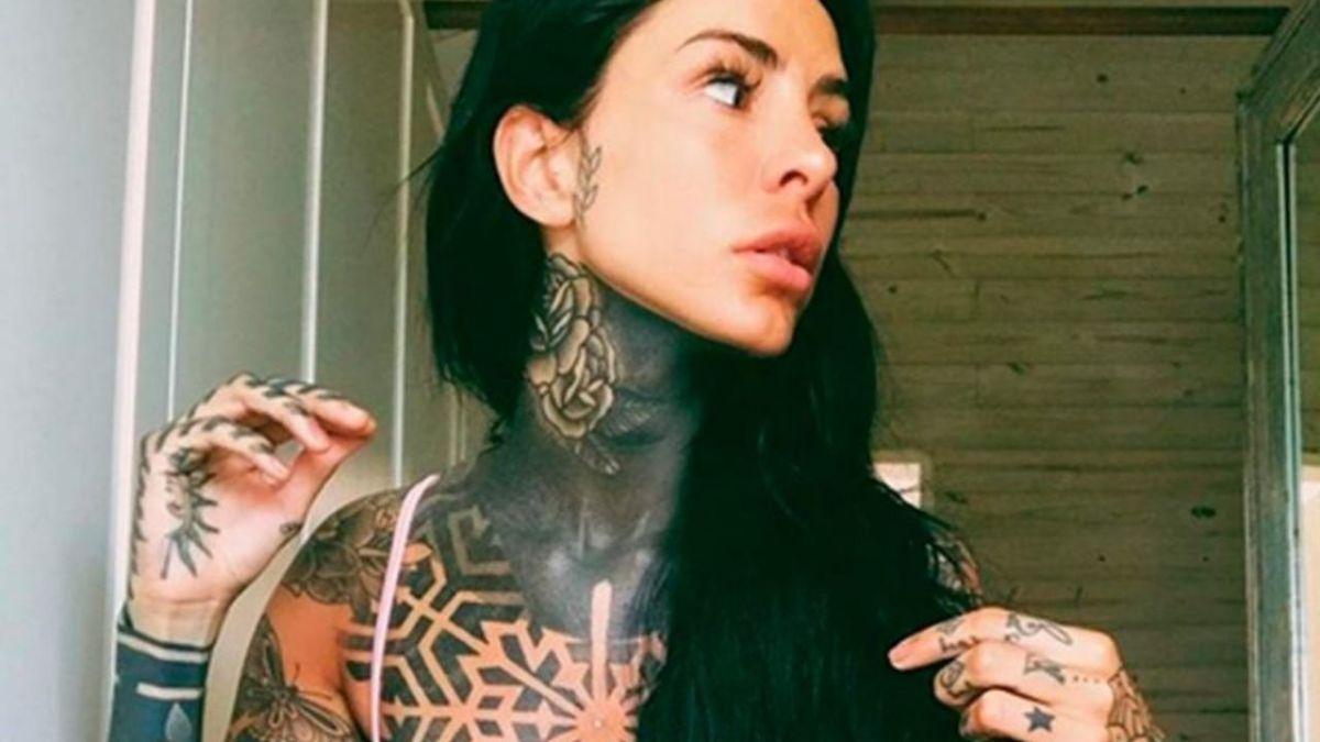 La influencer Cande Tinelli mostró su herida a través de Instagram