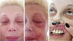 Carmen Barbieri tiene parálisis facial