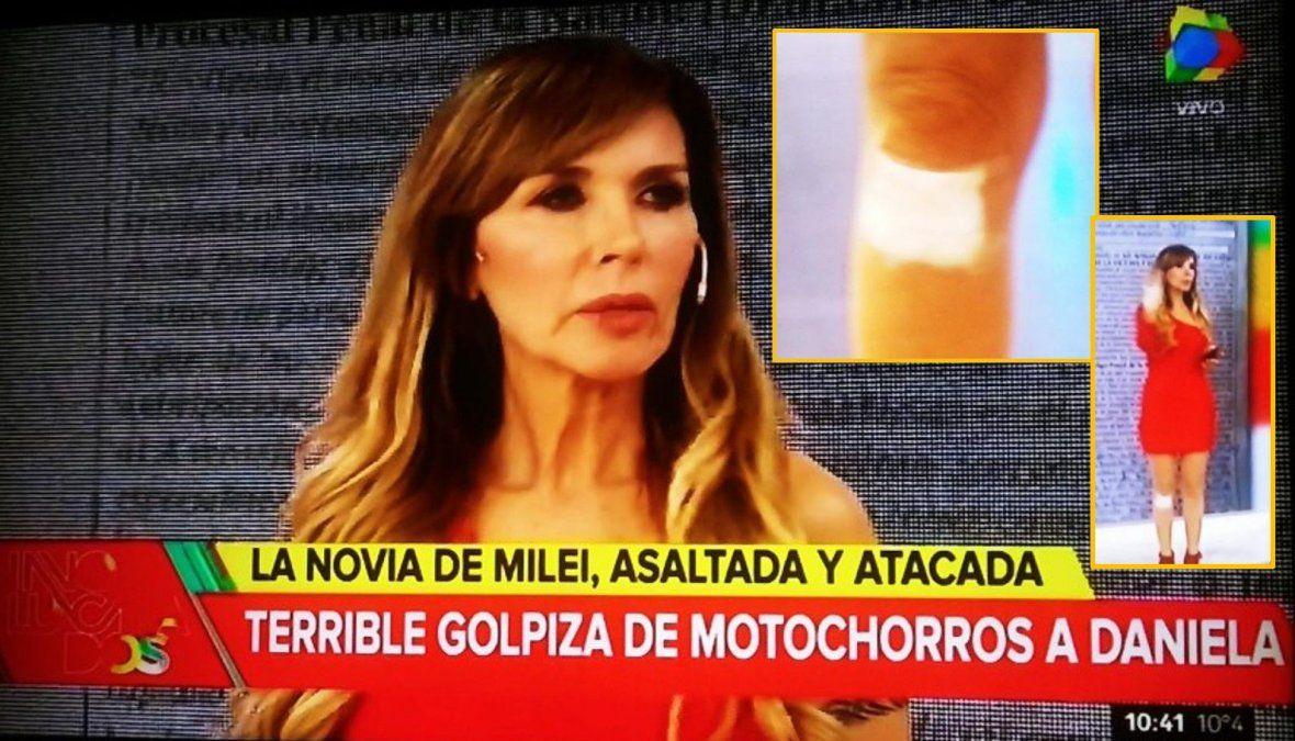 La cantante Daniela fue asaltada y atacada por motochorros: Fue muy violento